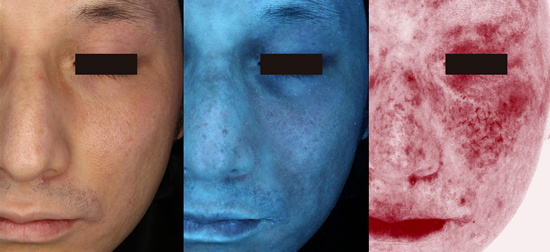 ニキビ 皮膚 科 行く べき か